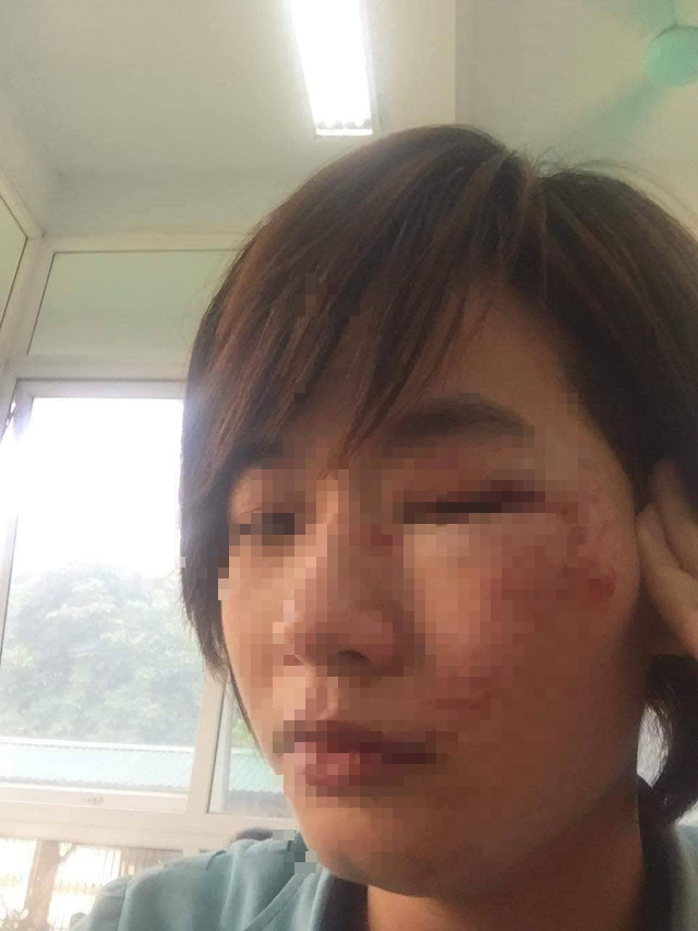 Đã xác định được danh tính nhóm thanh niên xăm trổ hành hung nữ nhân viên xe buýt - Ảnh 2.