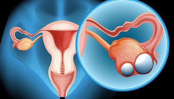Cô gái 23 tuổi chưa kết hôn đã bị ung thư dạ dày di căn buồng trứng, cảnh báo những thói quen xấu nhiều người mắc - Ảnh 1.