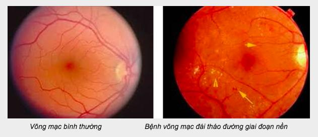 Căn bệnh khiến đạo diễn Khải Hưng bị mù một mắt là kẻ giết người đe doạ hơn 5 triệu người Việt - Ảnh 3.