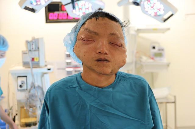 Giải thoát cho nam thanh niên khỏi khối u làm biến dạng khuôn mặt suốt 17 năm - Ảnh 2.