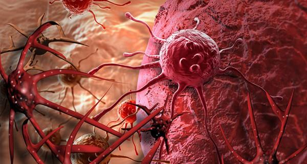 Duy trì 10 thói quen mỗi ngày, ung thư khó tới gần bạn - Ảnh 1.