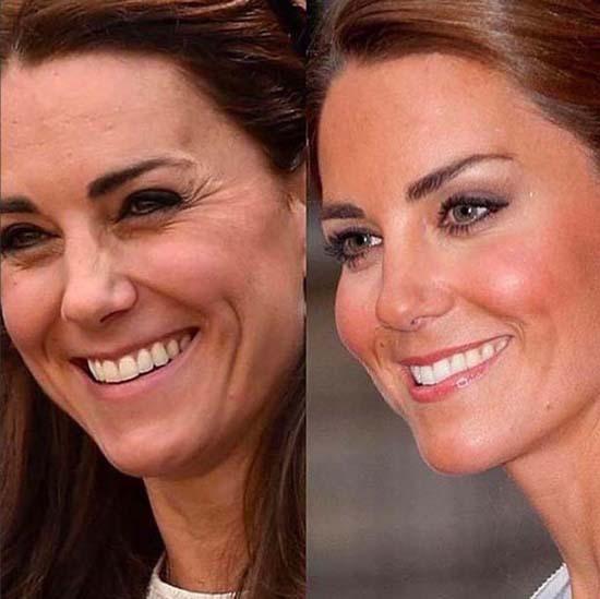 Ảnh Kate bị dùng để quảng cáo căng da mặt - Ảnh 1.