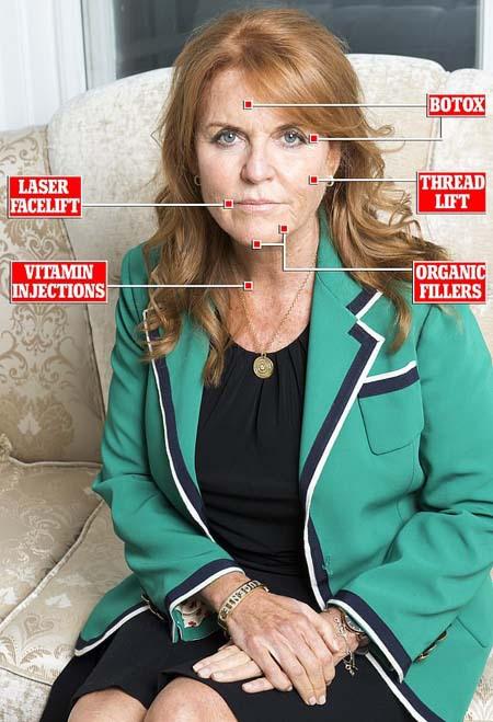 Ảnh Kate bị dùng để quảng cáo căng da mặt - Ảnh 2.