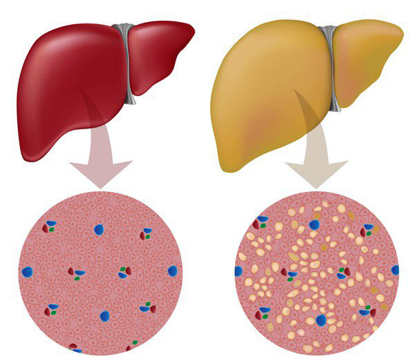 Triệu chứng và cách phòng ngừa gan nhiễm mỡ độ 2  - Ảnh 1.