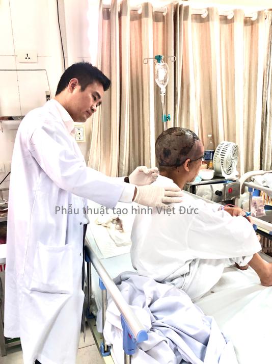 Hi hữu: Quấn tóc vào máy, nữ bệnh nhân bị lột da vùng đầu và nửa mặt - Ảnh 1.