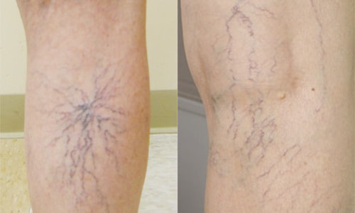 Những đường vằn vện ở chân: Căn bệnh nguy hiểm nhiều người mắc cả chục năm mà không biết - Ảnh 1.