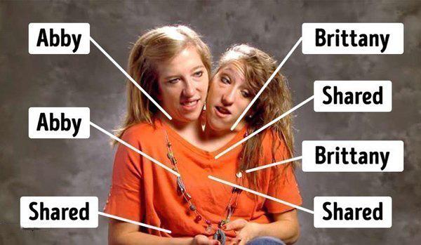 Cuộc sống sau 29 năm của cặp chị em sinh đôi dính liền thân nổi tiếng thế giới  - Ảnh 3.