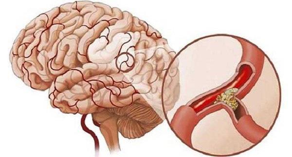 3 triệu chứng khó chịu khi ngủ cảnh báo bệnh nhồi máu não - Ảnh 1.