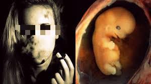 Tác hại đáng sợ của thuốc lá đối với sức khỏe sinh sản nữ giới - Ảnh 1.