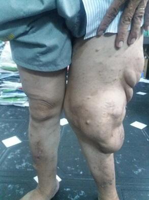Thầy giáo dạy Toán mang đôi chân biến dạng suốt 20 năm lên bục giảng - Ảnh 1.