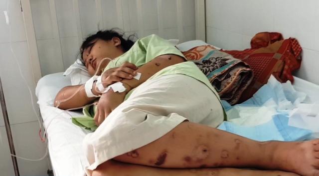 Thông tin bất ngờ vụ cô gái 18 tuổi bị giam giữ, tra tấn đến sảy thai ở Sài Gòn - Ảnh 1.