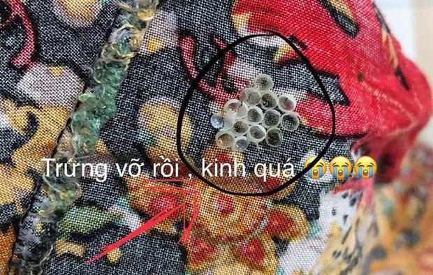 Thấy những hạt nhỏ tý này trên quần áo hay bám trên tường nhà thì phải loại bỏ ngay lập tức - Ảnh 2.