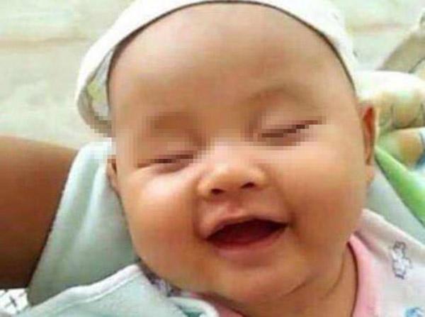 Nụ cười của con đáng yêu nhưng đôi khi cũng là dấu hiệu phản ánh tình trạng bất thường (Ảnh internet)