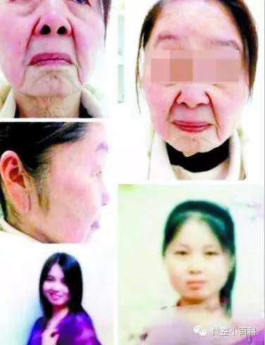 Hồ Quyên sau 1 đêm giống như bà lão 60 tuổi