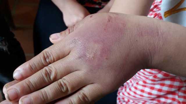 Những vết thương xuất hiện rất nhiều ở tay cháu Nh.
