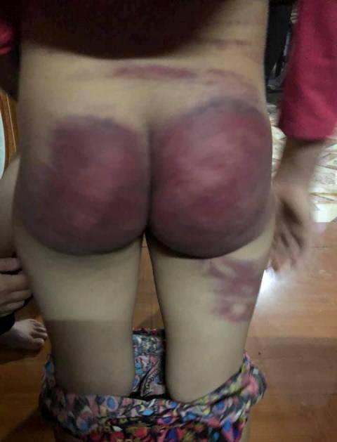 Bé Nh. bị người bố nghiện ma túy đánh bầm dập ở mông