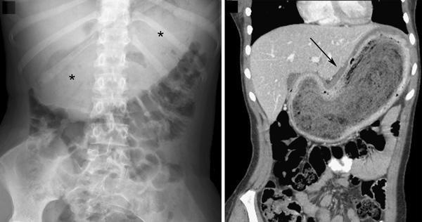 Bezoar có thể gây tắc nghẽn trong dạ dày hoặc ruột, nguy hiểm hơn khi nó có thể đe dọa tính mạng.