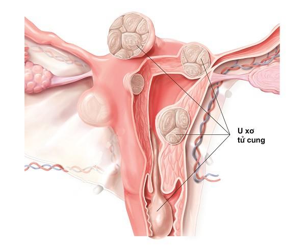 U xơ tử cung sẽ gây ra rất nhiều biến chứng như mất máu, thiếu máu, suy kiệt, suy tim, hiếm muộn, vô sinh, đau hạ vị...