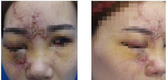 Khuôn mặt của cô gái bị sưng, biến dạn sau khi tiêm filler. Ảnh: Vietnamnet