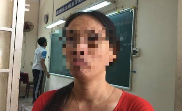 Cô Trần Thị Minh Châu từng lên lớp không nói suốt 3 tháng