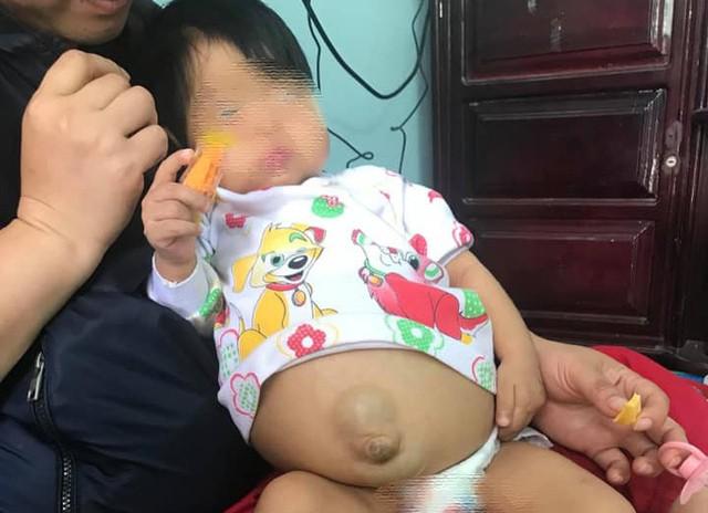 Bé Minh Châu bị mắc bệnh xơ gan