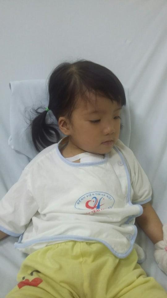 Bé Nhật Hạ hiện tại đã tỉnh táo sau ca phẫu thuật lần 3 miễn phí. ảnh GĐCC