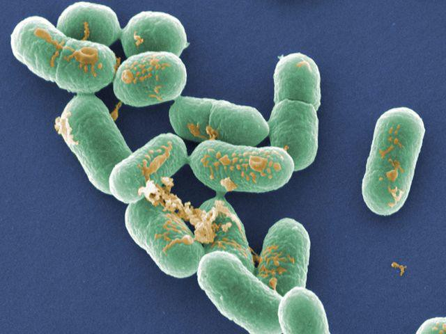 Vi khuẩn isteria monocytogenes tồn tại ở đất, nước, rau, thịt sống,...