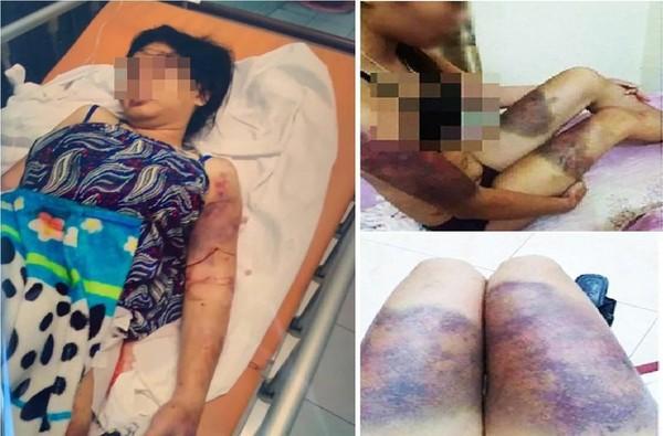 Hình ảnh nạn nhân Y. bị tra tấn dã man