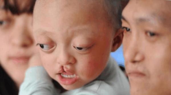 Hai anh chị quyết tâm sinh con với hy vọng bé chỉ bị hở hàm ếch, sứt vòm miệng.