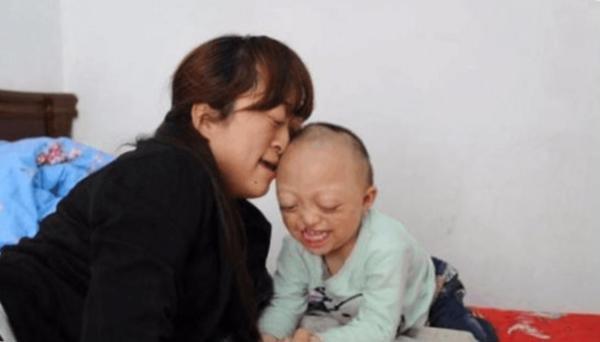 Đáng tiếc, đứa bé chào đời với dị tật của cả bố và mẹ, kèm theo chứng hẹp sọ.