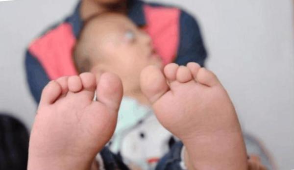 Những ngón chân của bé bị dính nhau.