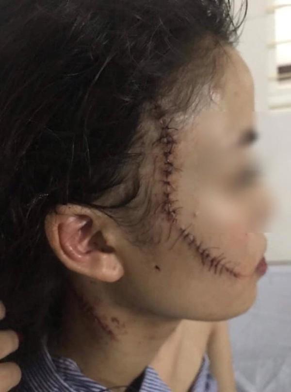 Tổng cộng, Q bị rạch 7 vết dài từ 5-10 cm trên vùng mặt, cổ, khâu 60 mũi.