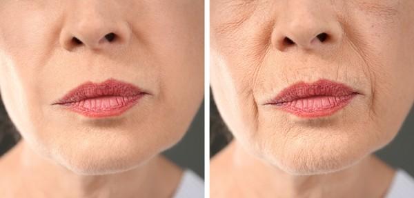 Nếp nhăn là một trong những dấu hiệu dễ nhận thấy nhất khi cơ thể bắt đầu lão hóa.