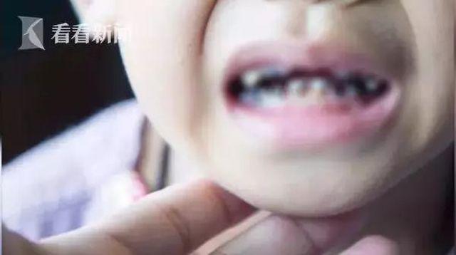 Tiểu Bình đã bị hỏng 16 chiếc răng.