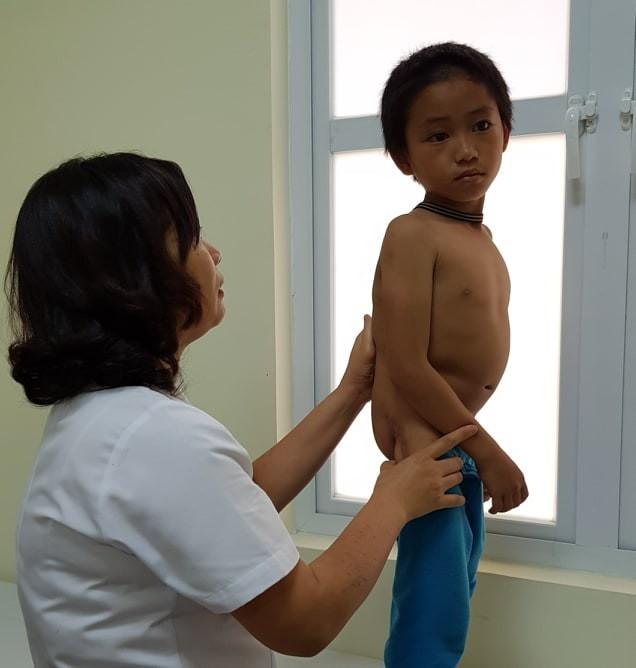 TS. BS Nguyễn Việt Hoa, Trưởng khoa Phẫu thuật Nhi và Trẻ sơ sinh (BV hữu nghị Việt Đức) khám cho bé Vàng Thìn Thượng.