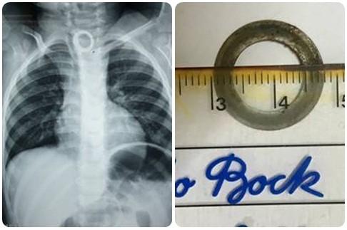 Hình ảnh phim chụp X-quang có và dị vật có cạnh sắc gỉ sét sau khi được các bác sĩ lấy ra khỏi cơ thể bệnh nhi. Ảnh: BVCC
