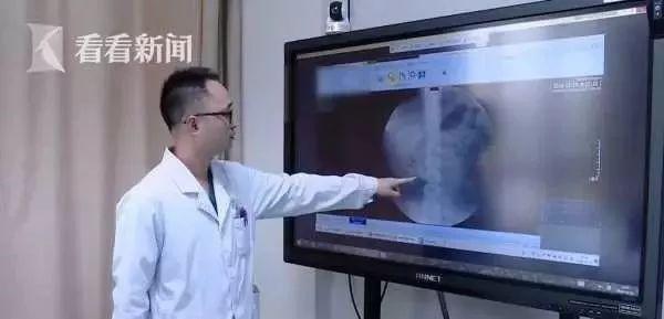 Hình ảnh chụp X-quang cho thấy trong thận của đường tiết niệu của Tiểu Hiên chứa một lượng lớn sỏi lớn nhỏ.