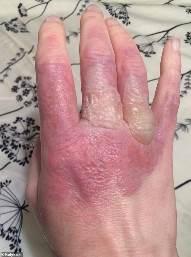 Bàn tay bị bỏng rộp của người phụ nữ.