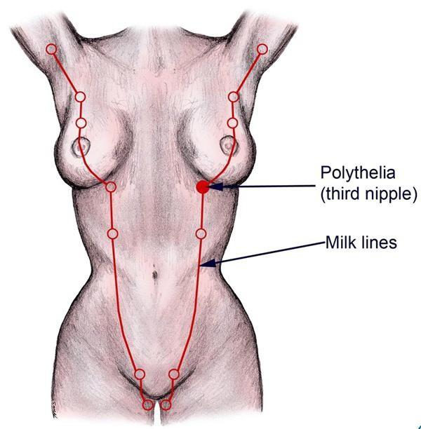 Mô vú nằm lạc chỗ khiến người phụ nữ tiết sữa từ âm hộ. Ảnh: TL