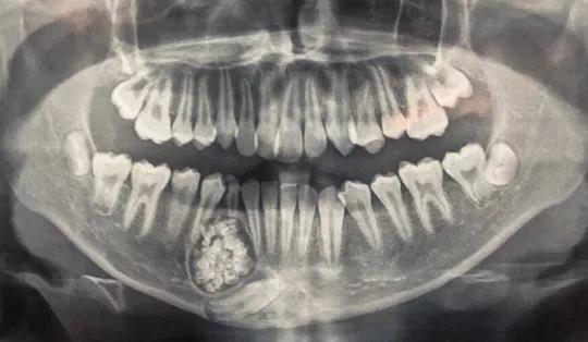 U răng với gần 100 chiếc răng nhỏ. Ảnh: Bệnh viện Đa khoa Khánh Hòa cung cấp.