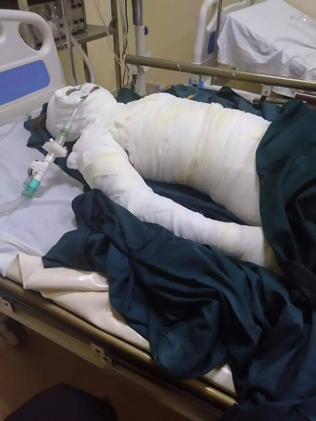 Loas Sreyne bị bỏng quá nặng và qua đời trong bệnh viện. Ảnh: AsiaWire.