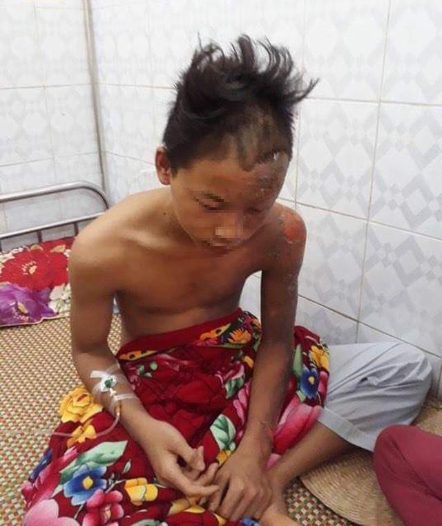 Nam bệnh nhân ở Thanh Hoá may mắn thoát chết dù bị sét đánh cháy sém từ trên trán xuống nửa người. Ảnh: TT