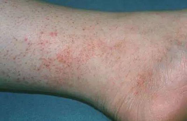 Tiểu Văn xuất hiện các đốm đỏ trên bắp chân và nghĩ rằng là dị ứng
