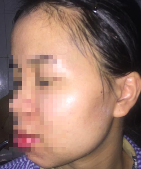 Gương mặt cô gái 24 tuổi sau khi được điều trị tại Bệnh viện Da liễu Trung ương. Ảnh: BVCC