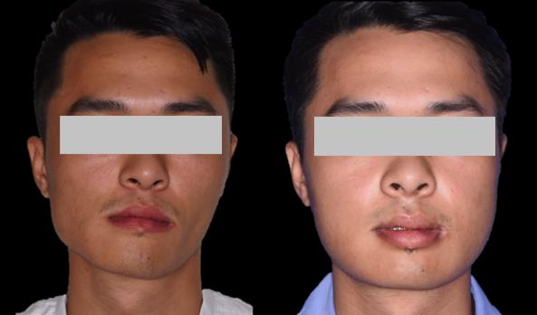 Nam thanh niên bị lệch mặt nặng nề vì khối u trong hàm - Ảnh 1.