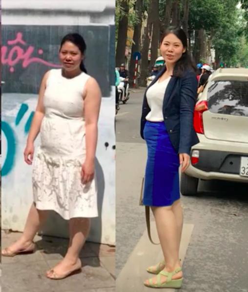 Phương Anh trước và sau mổ