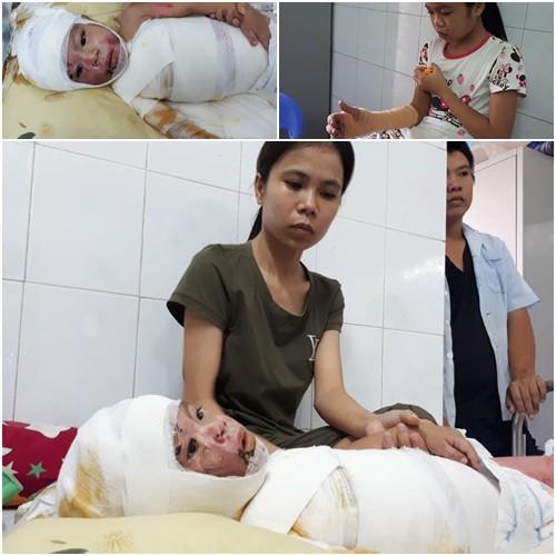 Các con gặp tai nạn, vợ chồng anh Thường, chị Hương lo lắng khi việc điều trị còn kéo dài. (Ảnh: PT)