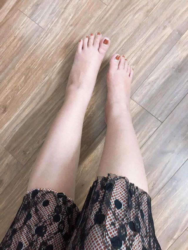 Đôi chân của cô gái bị chàng trai chê giữa đám đông