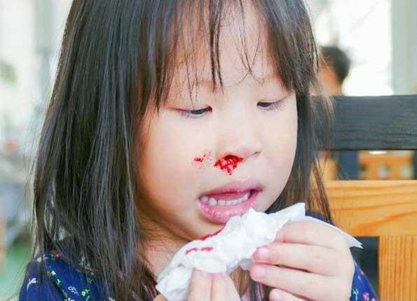 Trong ngày hè trẻ dễ có hiện tượng chảy máu cam. Ảnh minh họa