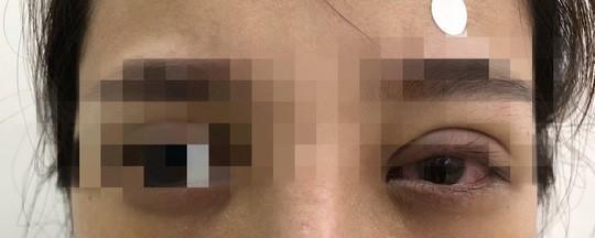 Sau khi nhấn mi ở spa, cô gái bỗng thấy mắt trái nhìn mờ, đau nhức, chói cộm, mi phù nề... Ảnh BVCC